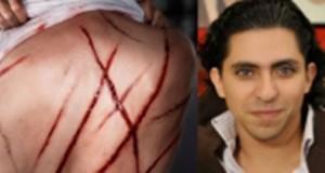 وقفات تضامنية مع المدوّن السعودي رائف البدوي