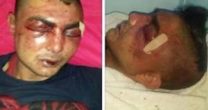 محامي منير العبدولي: الاعتداء الهمجي على موكّلي من قبل 3 أعوان أمن لن يمرّ بسهولة