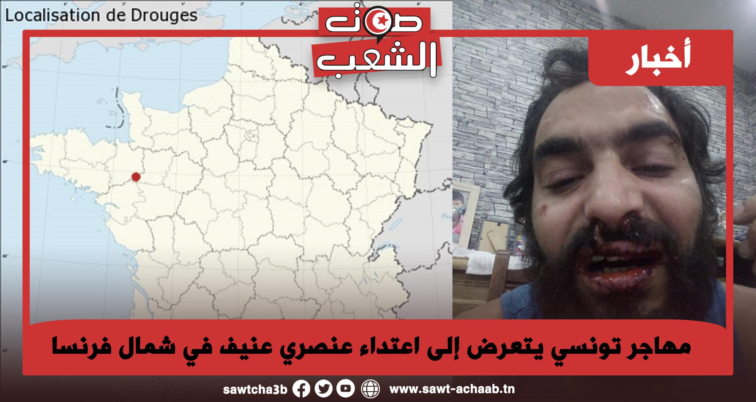 مهاجر تونسي يتعرض إلى اعتداء عنصري عنيف في شمال فرنسا